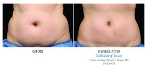 coolsculpting-before-and-after1