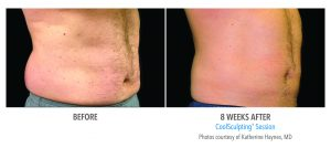 coolsculpting-before-and-after2